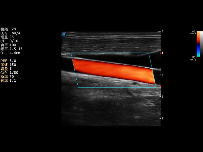 颈动脉血流